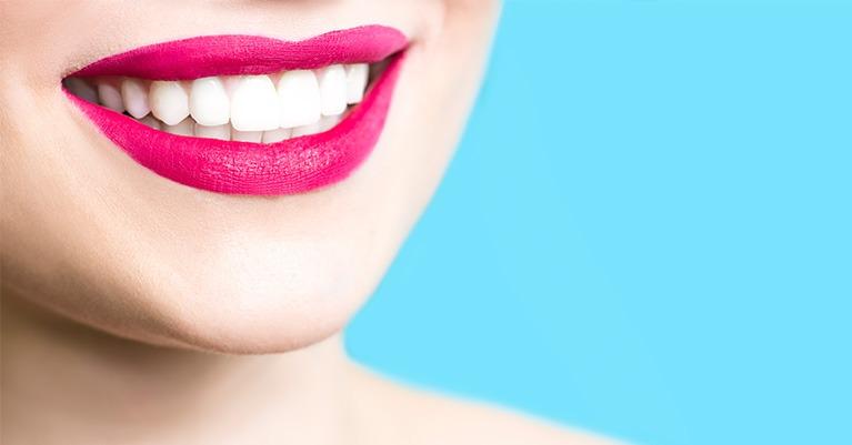 5 positive Auswirkungen der regelmäßigen Zahnsteinentfernung